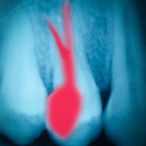 root canal in Hillsboro