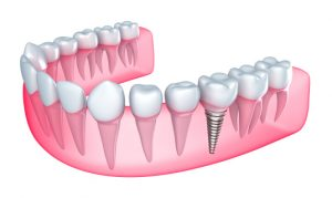 For dental implants, Hillsboro dentist recommends proper cleaning.