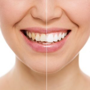 ant a brighter smile? Try KöR teeth whitening from The Dentists at Orenco Station – you'll be amazed by the dramatic results!