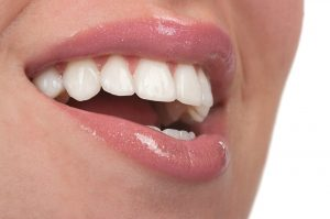 woman with veneers