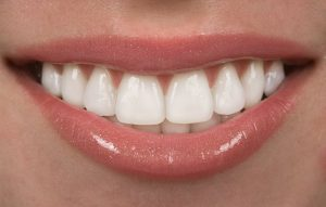 person with veneers smiling
