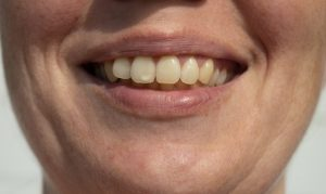 person smiling with white spots on their teeth