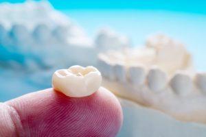 Dental crown on fingertip demonstrating dental crown lifespan in Hillsboro