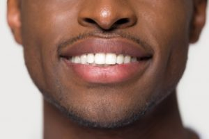 Man smiling with straight, white teeth