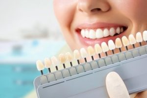 A woman smiling as the dentist determines her tooth color